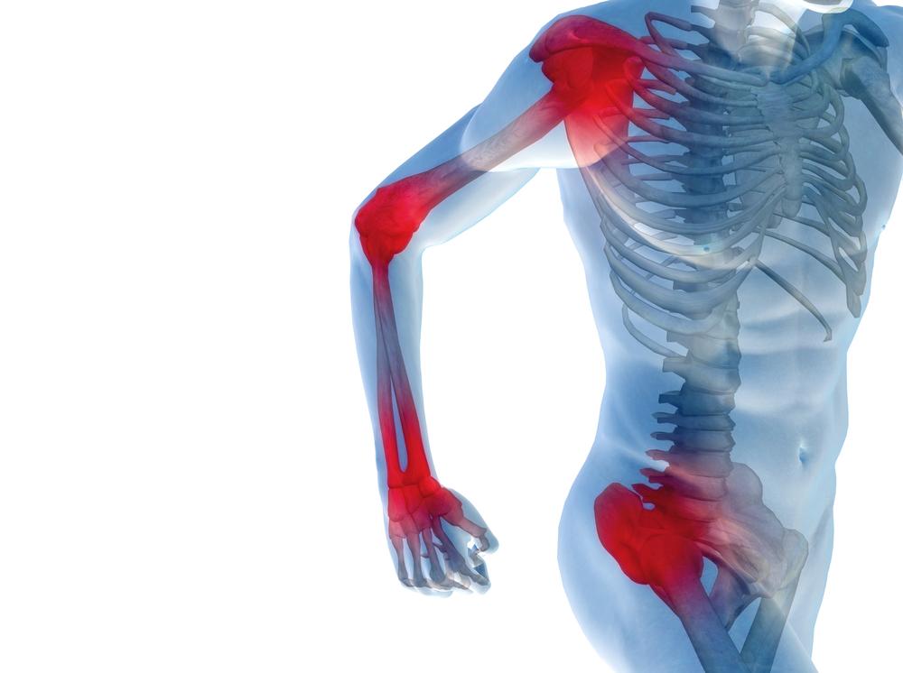 как получить 3 группу при артрозе коленного сустава