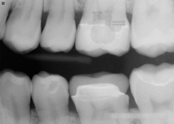 инопланетный чип в зубе