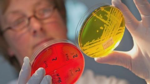 Микрофлора кишечника пополнилась новыми микроорганизмами