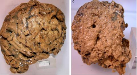 древнейший человеческий мозг