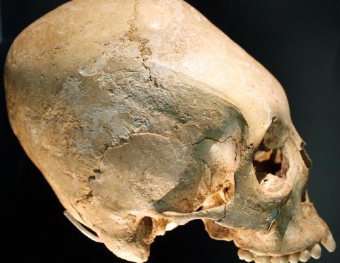 В Китае обнаружили останки древних людей с измененной формой черепа
