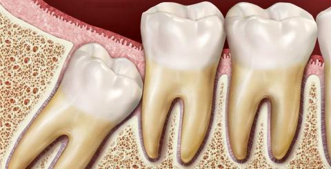 Зубы мудрости: удалять или нет, зачем нужны зубы мудрости