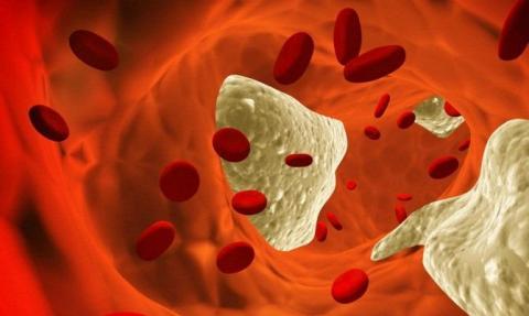 Названы восемь продуктов, снижающих уровень холестерина в крови