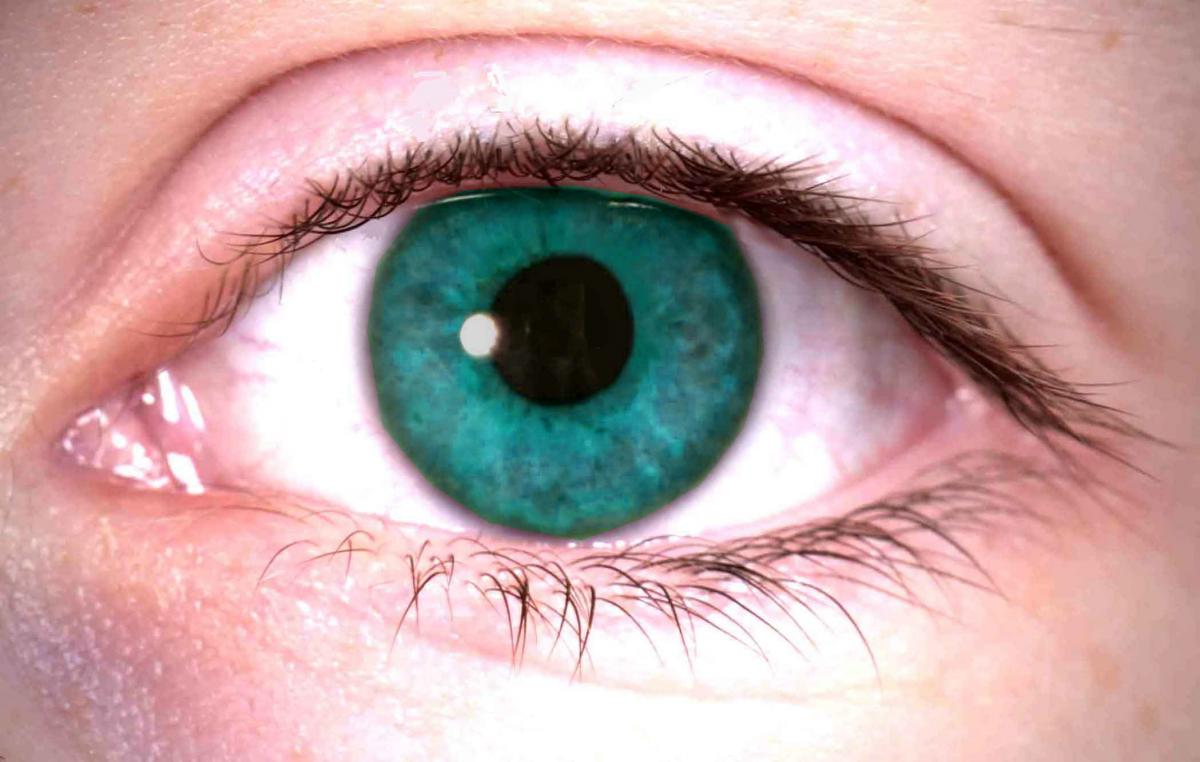 Глаза могут рассказать о болезнях