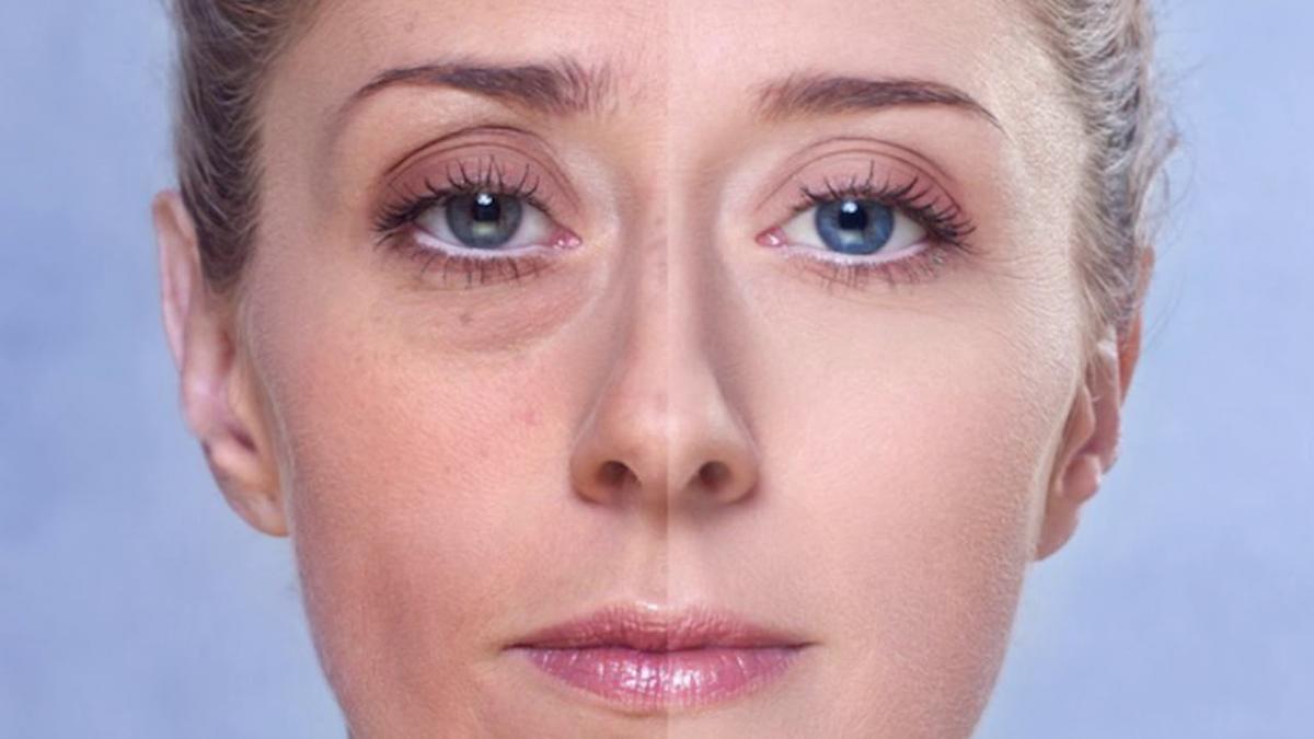 Диетолог назвала простые способы убрать мешки под глазами