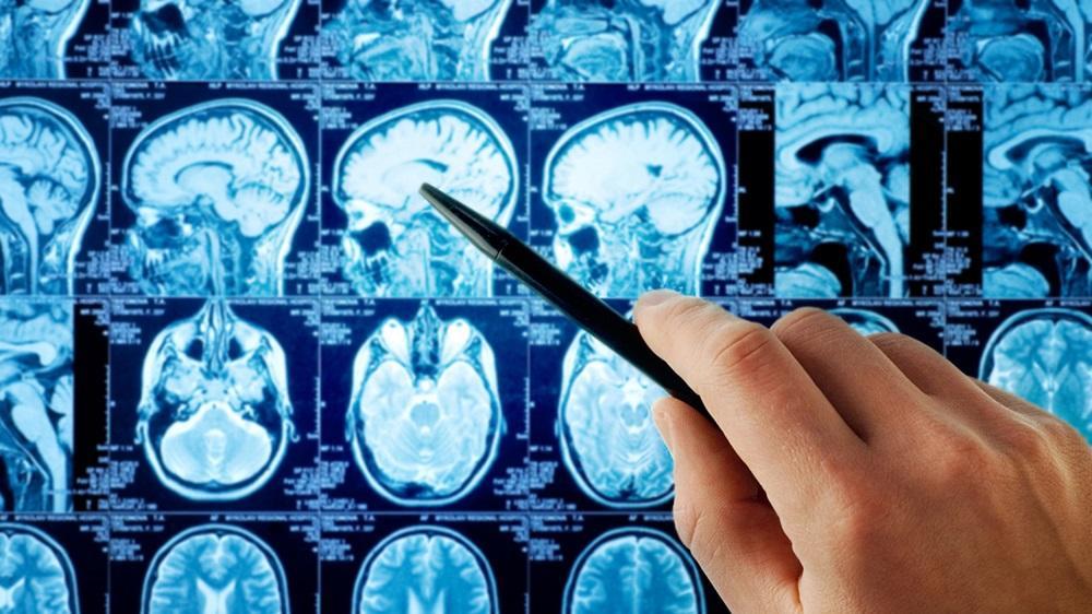 Электромагнитное излучение не вызывает глиому и менингиому