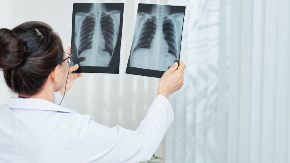 врач со снимками легких