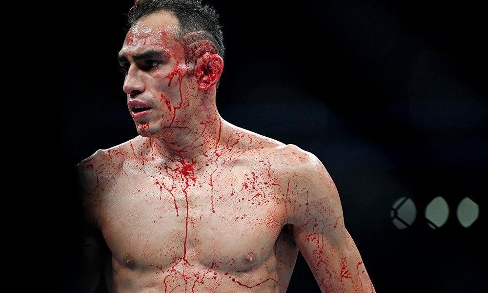 Боец UFC Тони Фергюсон подозревается в домашнем насилии