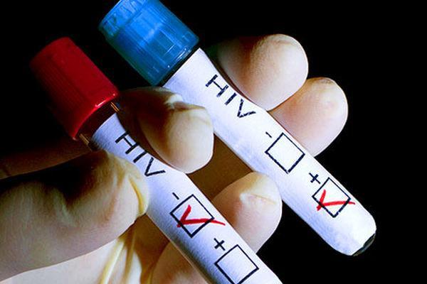 Зарегистрирован первый случай полного излечения от ВИЧ