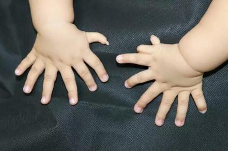 Ребенок с 31 пальцем