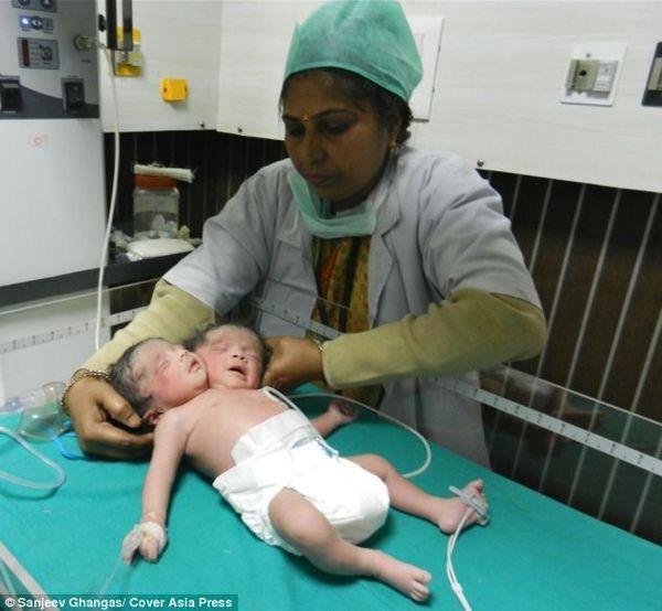 Видео сдвухголовым малышом изМексики шокировало сеть