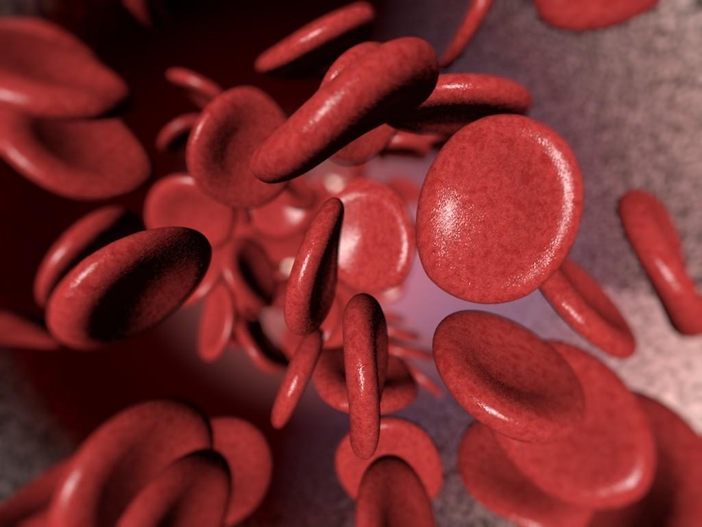 Почему падает уровень гемоглобина в крови, раскрыли медики