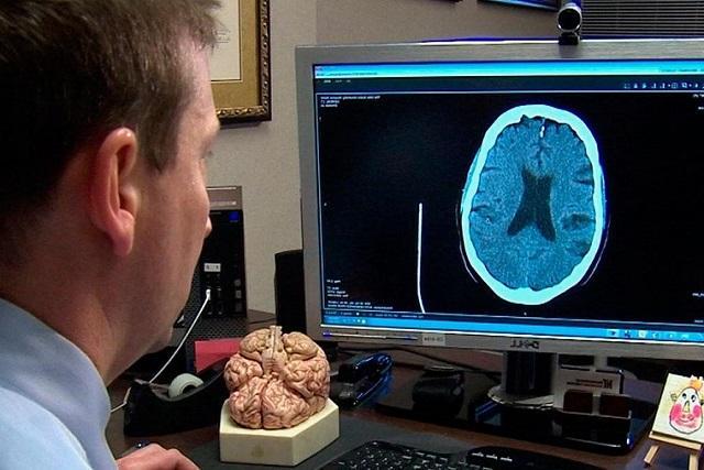 Диетологи назвали продукты, провоцирующие инсульт головного мозга