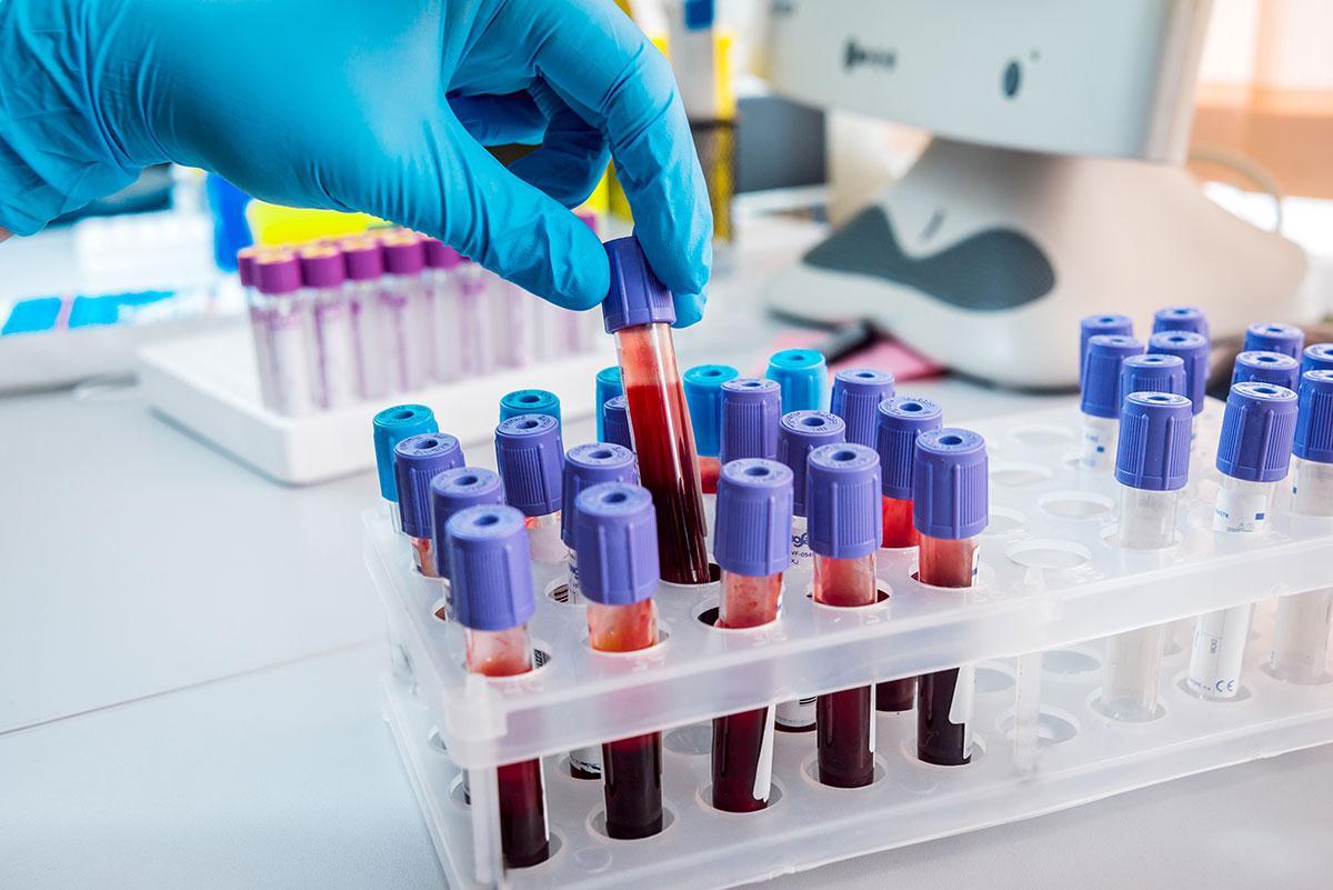 Каждая группа крови притягивает к себе определенные болезни, заявили исследователи