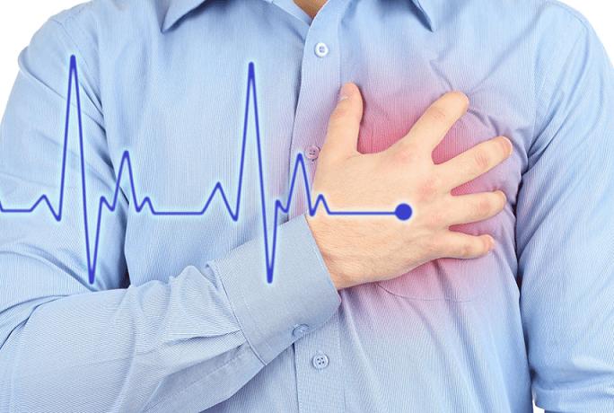 Пять неожиданных предвестников ишемической болезни сердца назвали медики