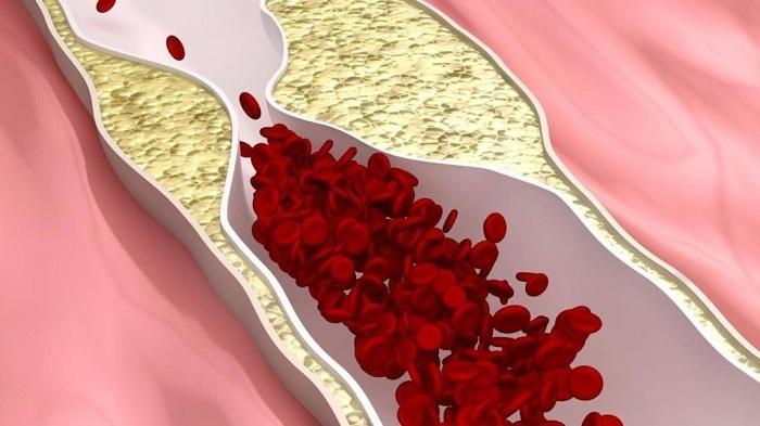 Картинки по запросу чистка артерий
