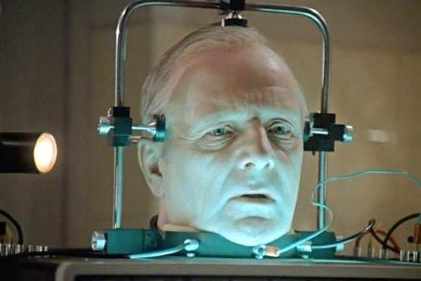 Операция по пересадке головы человеку планируется на следующий год — ученые