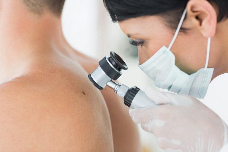 Пять признаков рака кожи назвали врачи