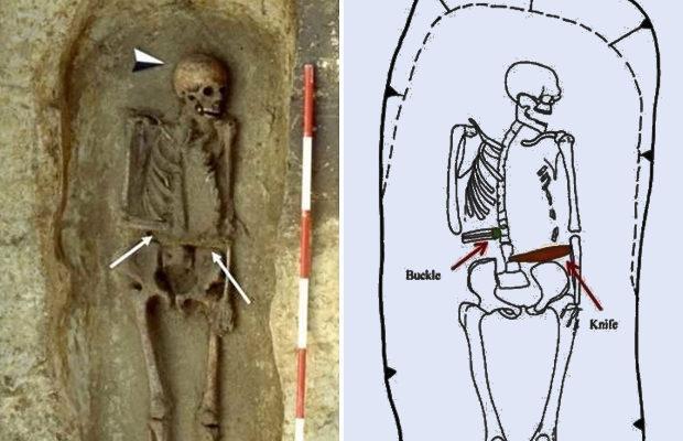 в Италии нашли скелет средневекового киборга с ножом вместо руки