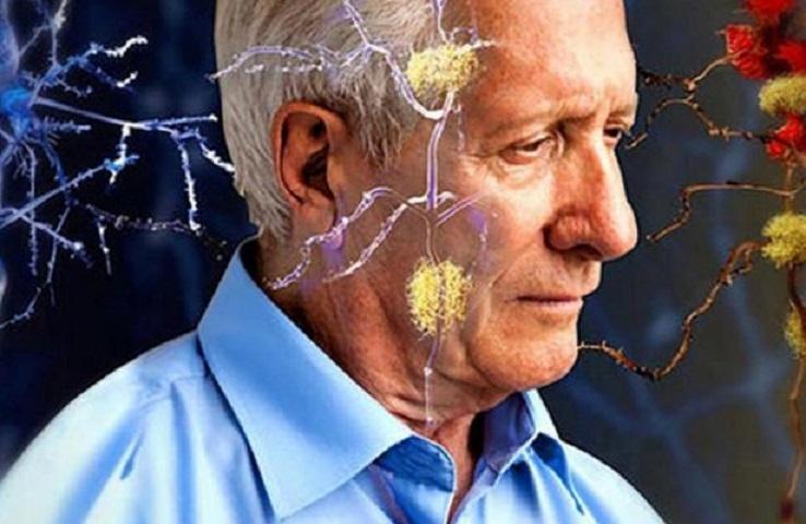 Пять ранних признаков деменции назвали медики